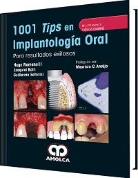 1001 Tips en Implantología Oral